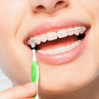 aparelho de dente quesia maroba dentista presidente kennedy