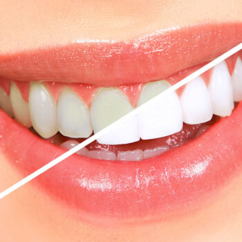 clareamento dental dentista presidente kennedy maroba quesia