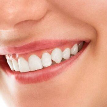 limpar dentes dentista presidente kennedy quesia euclides