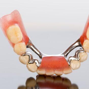 protese dente quesia euclides presidente kennedy maroba
